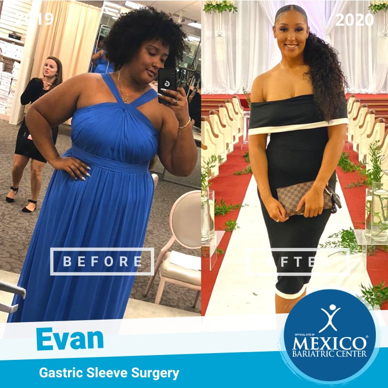 Evan - Weight Loss Surgery Before and After Photo