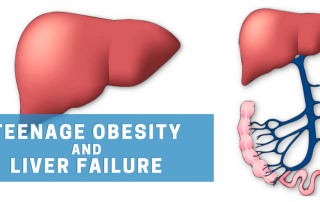 Teenage Obesity and Liver Failure - A Frightening Reality