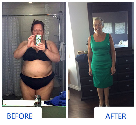 Holly Before and After Bariatric Surgery