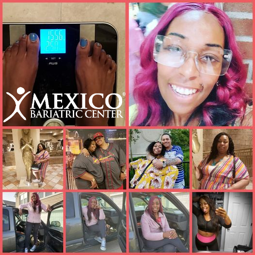 black women highest overweight - bariatric surgery in Mexico - before and after success with Mexico Bariatric Center