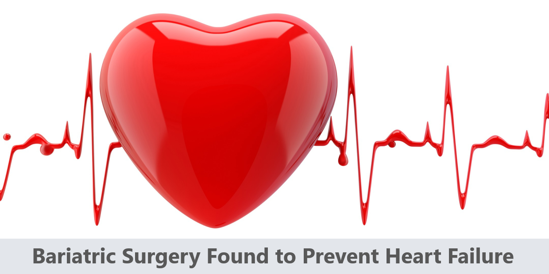 Bariatric Surgery Found to Prevent Heart Failure