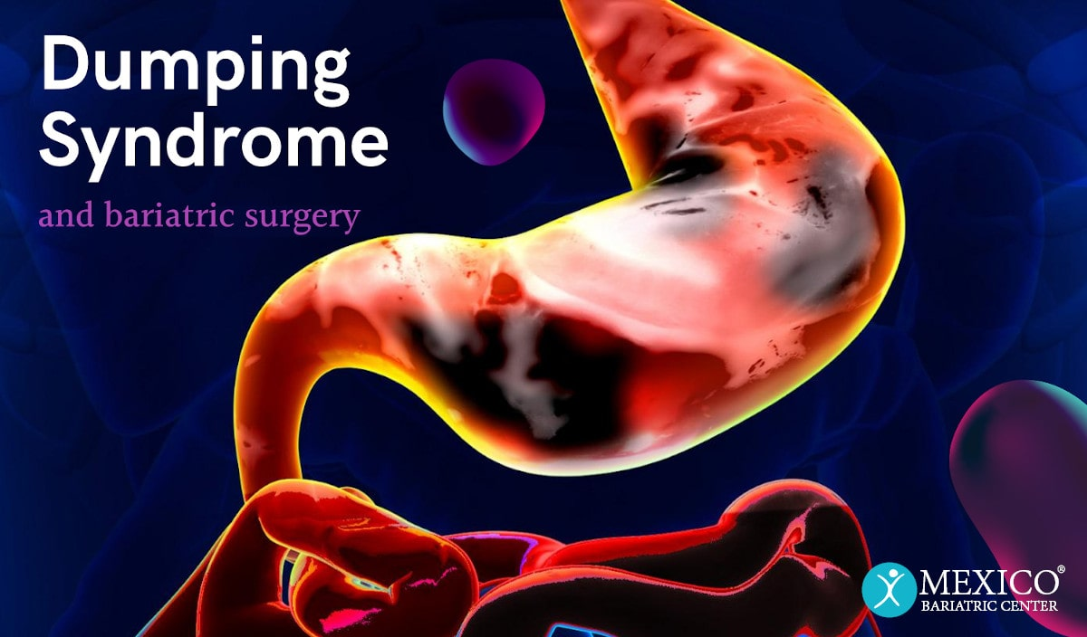 Dumping Syndrome and Bariatric Surgery Gastric Sleeve and Gastric Bypass