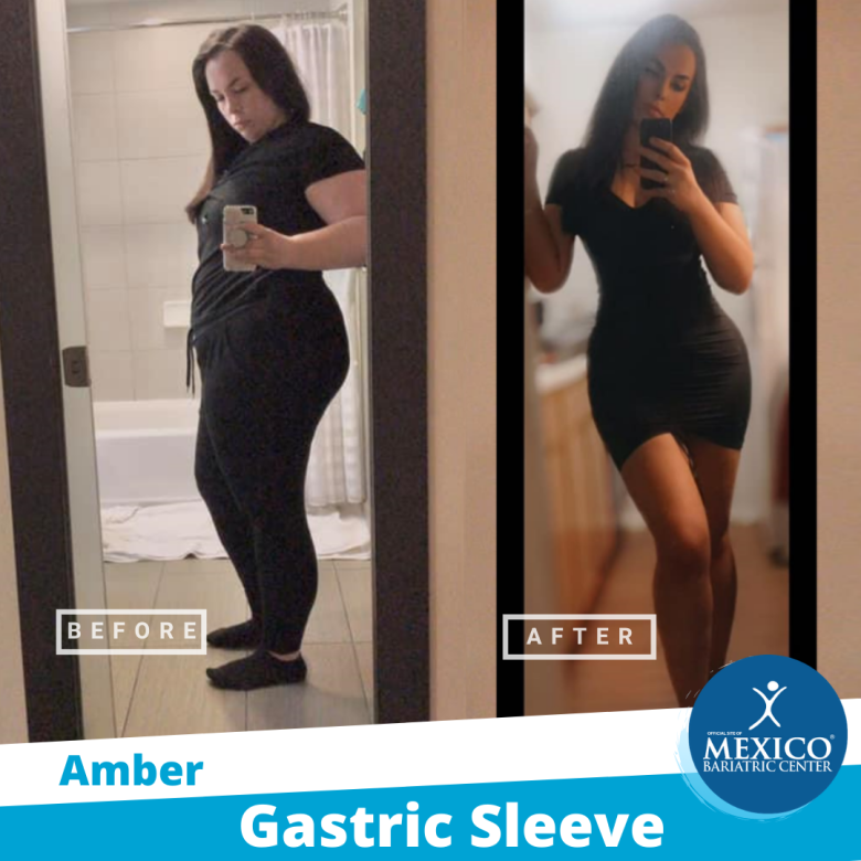 Before and After - Amber 2021 - Mexico Bariatric Center