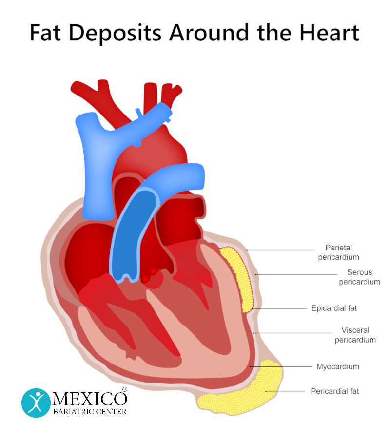 Fat Deposits Around the Heart