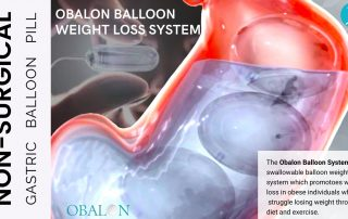 OBALON Gastric Balloon Weight Loss System - Swallowable Pill