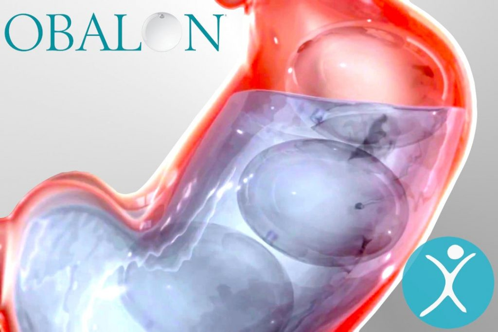 Obalon Swallowable Balloon Pill Weight Loss System