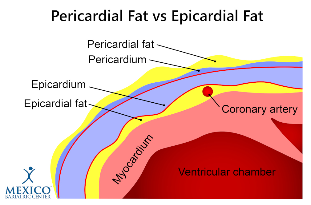 Pericardial Fat vs Epicardial Fat