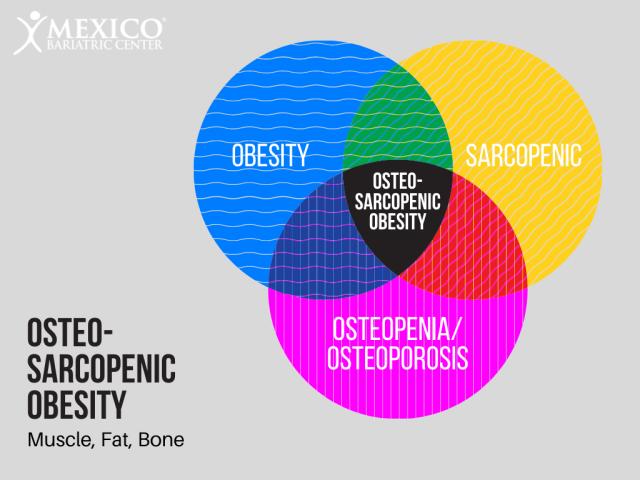 OsteoSarcopenic Obesity - OSO