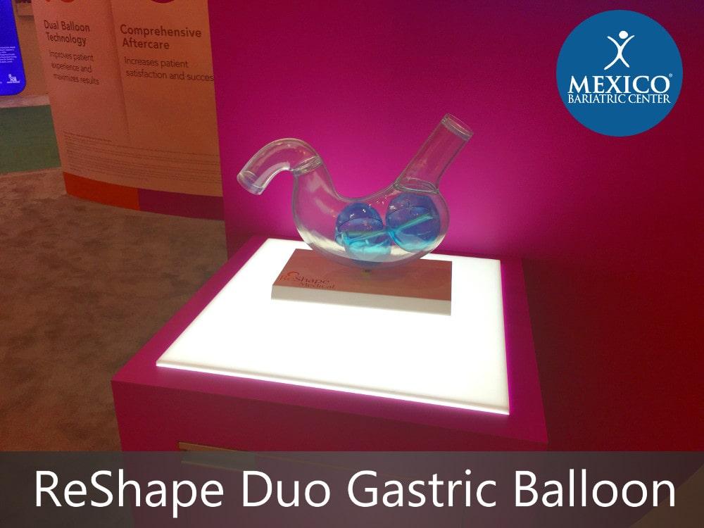 ReShape Duo Gastric Balloon Procedure