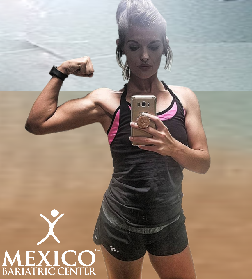 building muscles after bariatric surgery with Mexico Bariatric Center