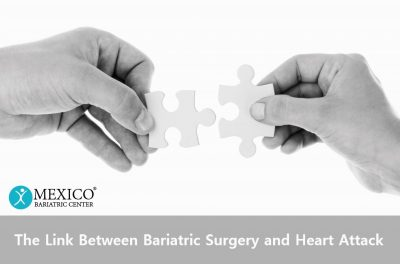 Link Between Bariatric Surgery and Heart Attack - Mexico Bariatric Center