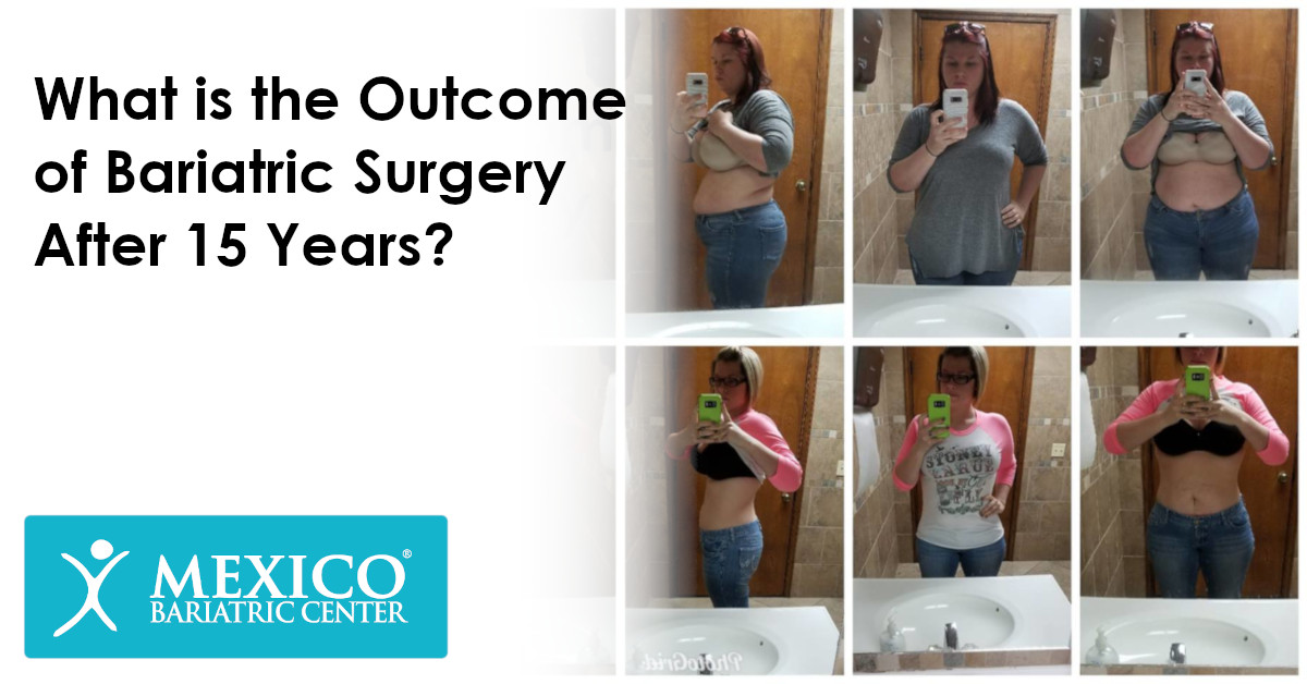What is the outcome of bariatric surgery after 15 years - Mexico Bariatric Surgery