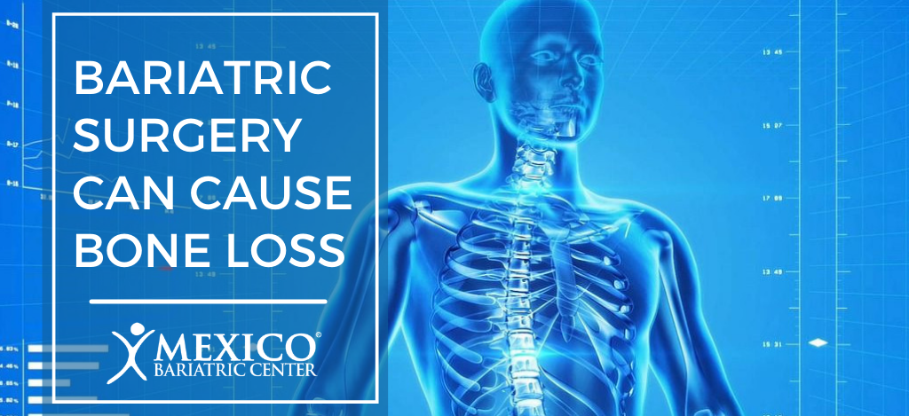 bariatric surgery can cause bone loss - more falls and fractures