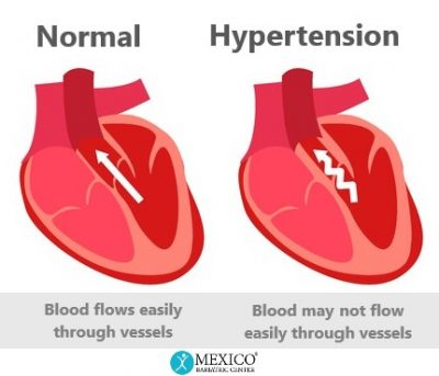 Hypertension - heart pumps harder for blood flow in vessels - Mexico Bariatric Center