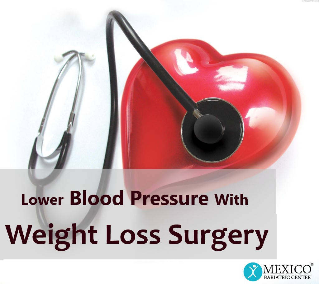 lower blood pressure with weight loss surgery - Mexico Bariatric Center