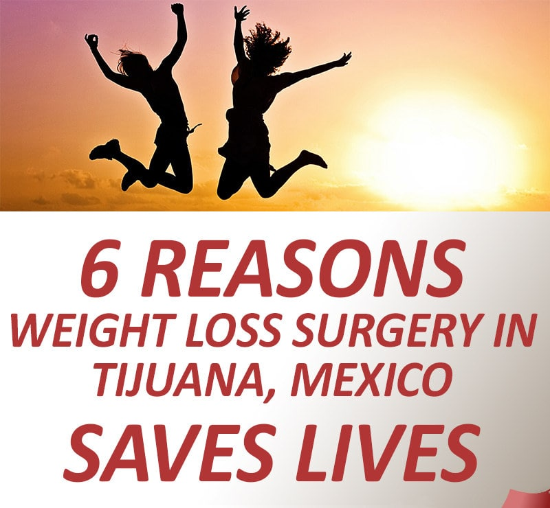 6 reasons why weight loss surgery in Tijuana, Mexico saves lives
