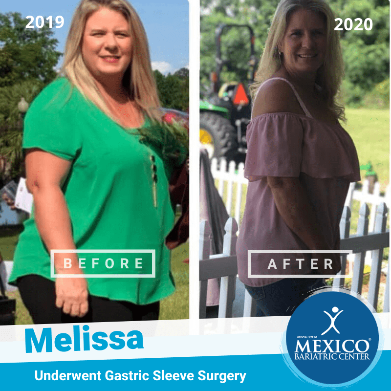 Melissa Bowen gastric sleeve before after 2019