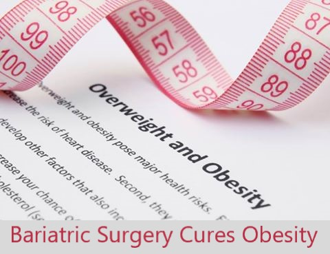 Bariatric Surgery Cures Obesity