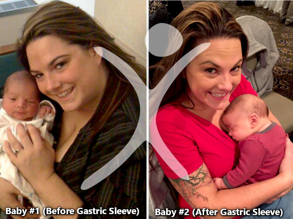 Having a Baby before and after Gastric Sleeve Picture