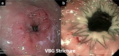 VBG Stricture - Stent