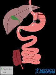 Vertical Band Gastroplasty Schematic