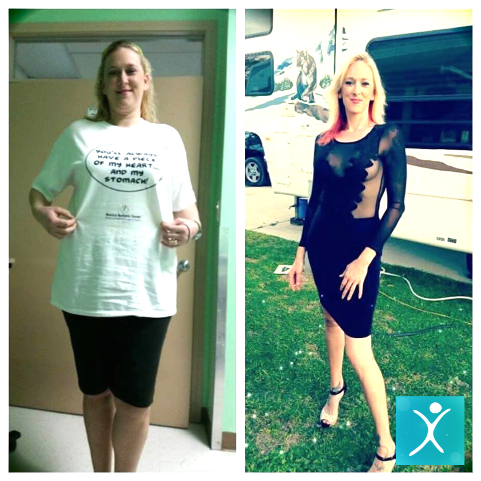 Erica Before and After Gastric Sleeve Surgery
