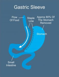 Gastric Sleeve Anatomy Image