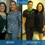 Dr Louisiana Valenzuela Before and After w Patient