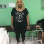 Mexico Bariatric Center Patient before weight loss surgery