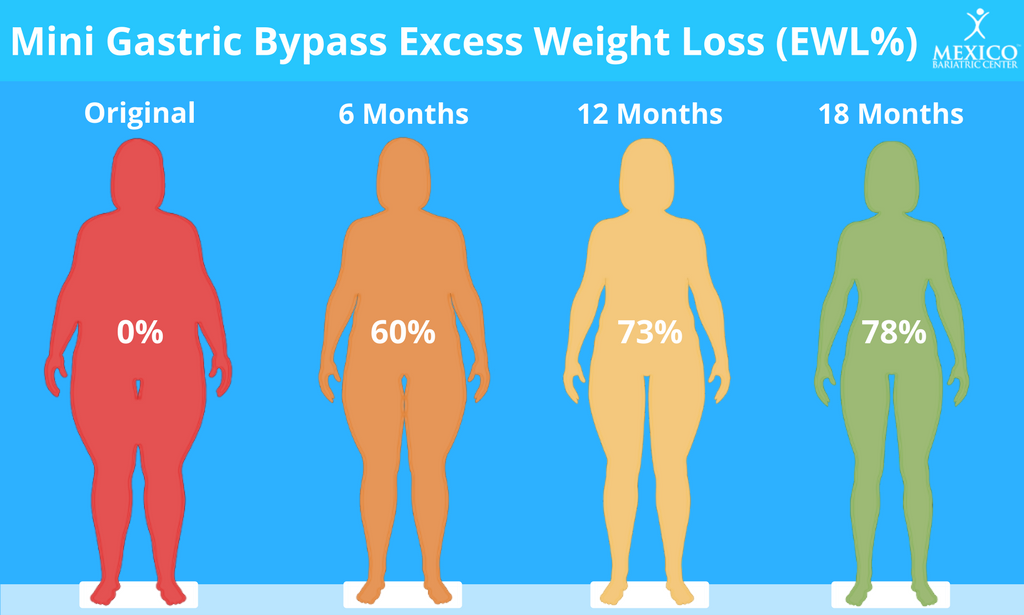 Mini Gastric Bypass Expected Weight Loss