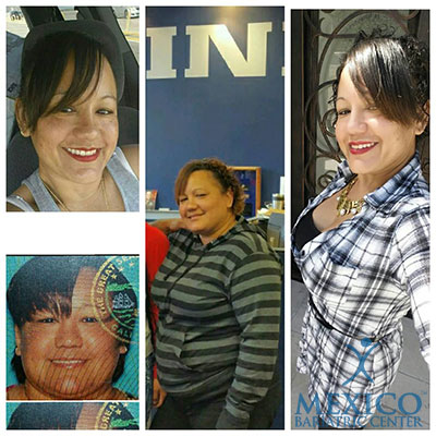Mexico Bariatric Center. Los Angeles bariatric surgery seminar. Before and after photos of a former patient.