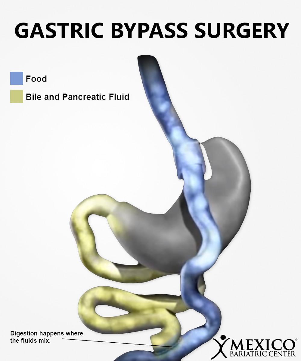 Gastric Bypass Surgery Roux en Y Diagram