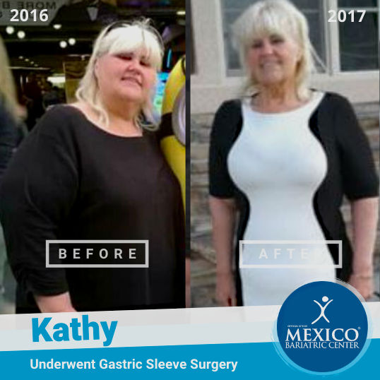 Kathy-A-Before-After-Weight-Loss-Success-Pictures