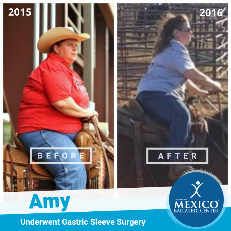 Amy T Before After Picture Gastric Sleeve - NSV Horse Riding Mexico Bariatric Center