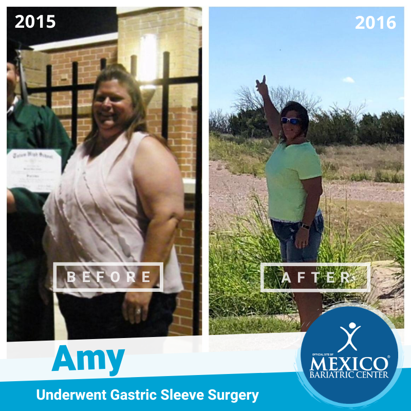Amy T Before After Picture Gastric Sleeve in Mexico Bariatric Center