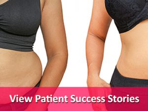 View Patient Success Stories by Mexico Bariatric Center