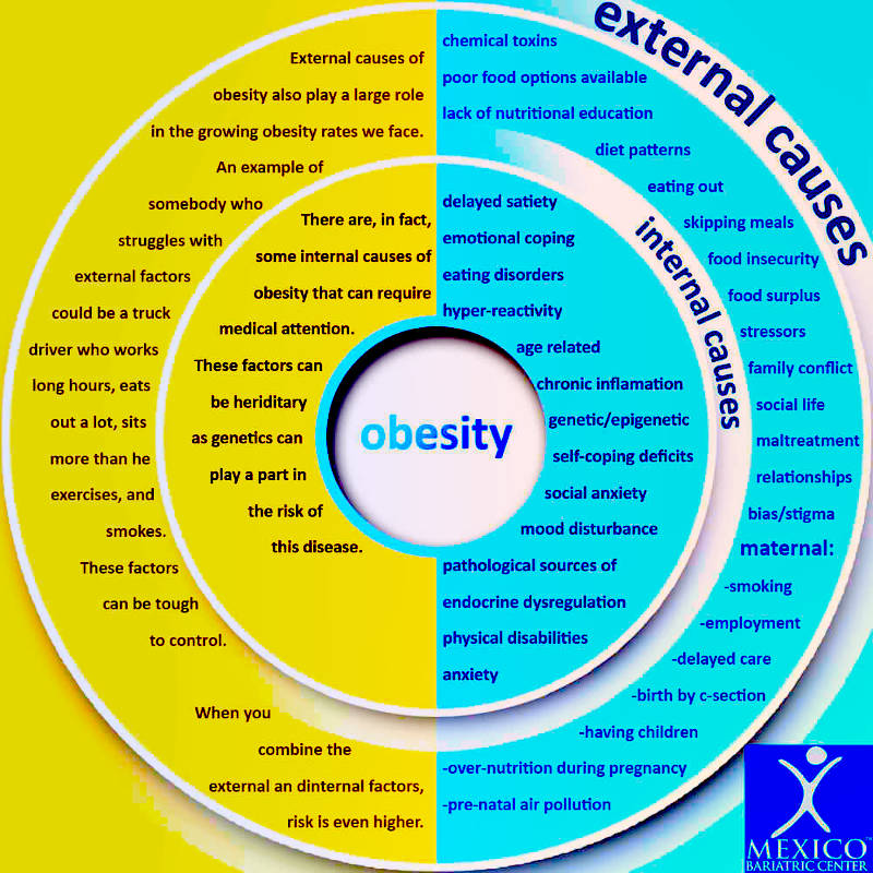 Causes of Obesity Infographic Chart