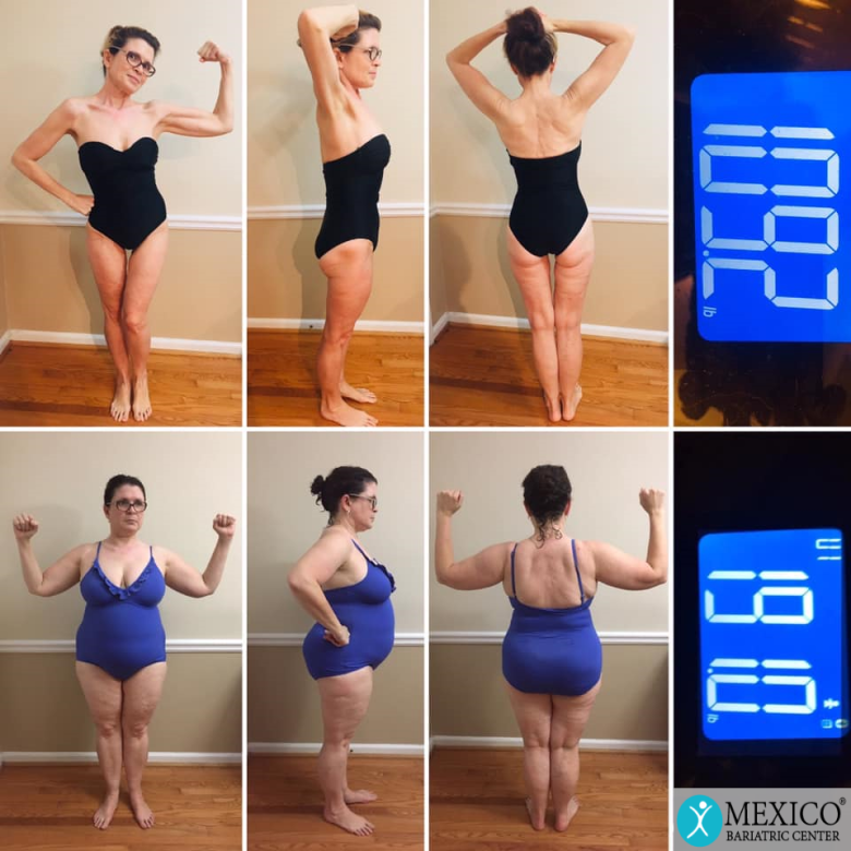 Emily Total Transformation - Mexico Bariatric Center and Mexico Cosmetic Center