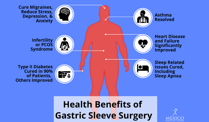 Health Benefits of Gastric Sleeve Surgery Infographic