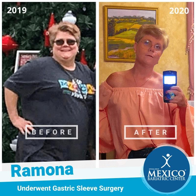 Ramona Griffin Gastric sleeve in Tijuana Mexico 2020