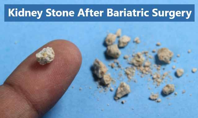 Kidney Stone After Bariatric Surgery in Mexico