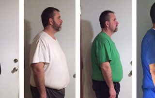 The Touching Story of Paul Who Underwent Gastric Sleeve Surgery