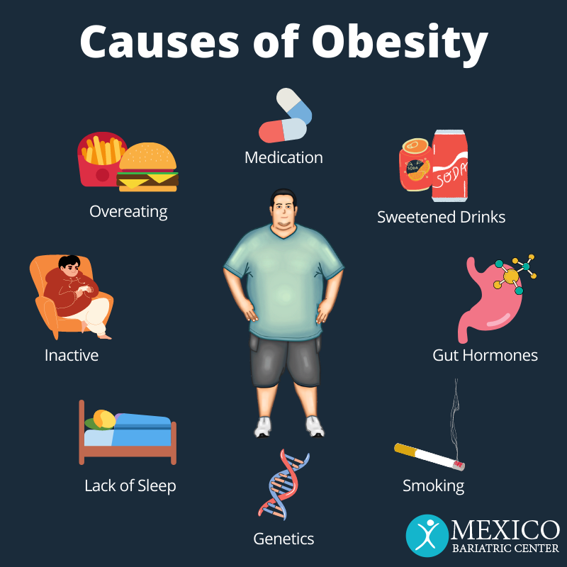 8 Causes of Obesity - Mexico Bariatric Center