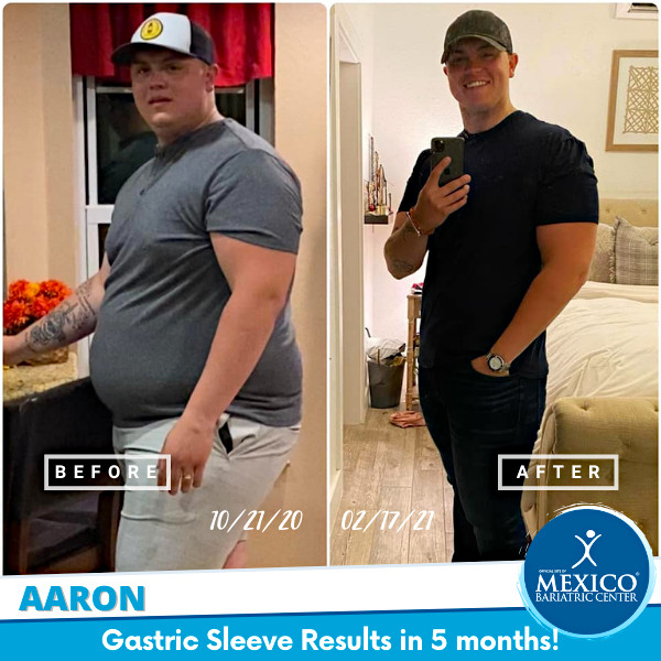 Aaron G - Gastric Sleeve Rapid Weight Loss Results in 5 months