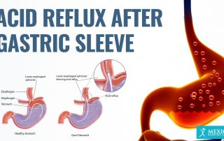 Acid Reflux After Sleeve Gastrectomy Gastric Sleeve