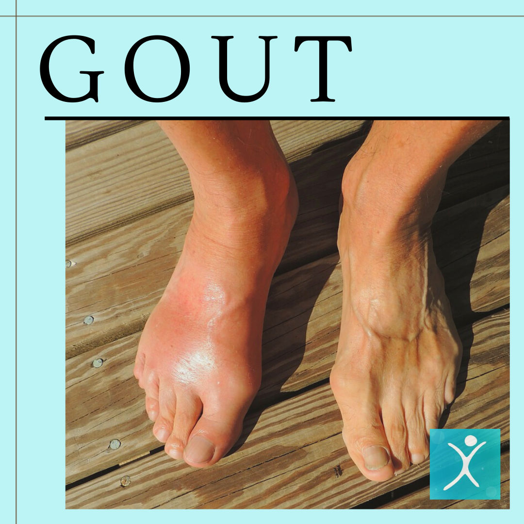 Bariatric Surgery Fights Gout