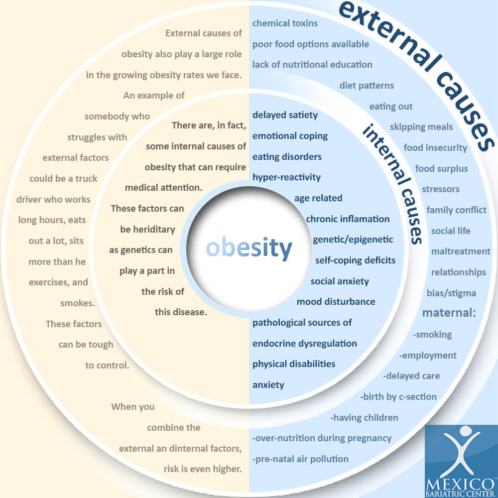 what causes obesity, external and internal causes, infographic