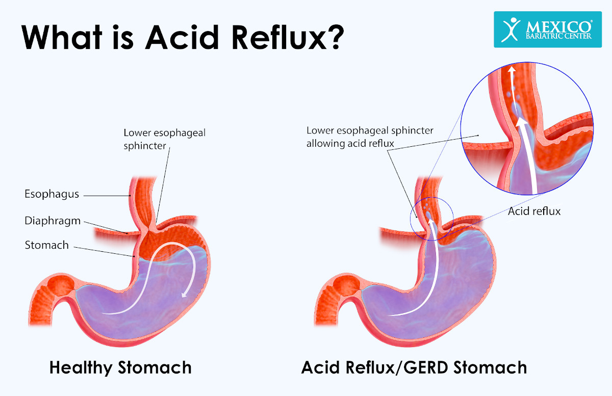 What is Acid Reflux - Acid Reflux After Gastric Sleeve