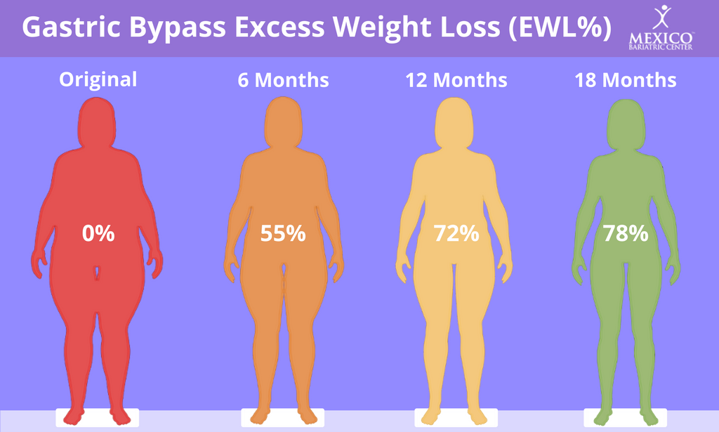 Average weight loss after roux en y