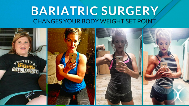 Bariatric Surgery Changes Your Body Weight Set Point